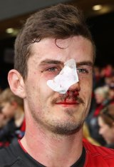 Bumped: Essendon's Michael Hartley leaves the field after being injured.