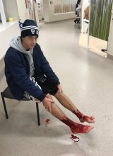 Bloody mess: Sam Kanizay in Emergency at Sandringham Hospital on Saturday night, his lower legs bloody after bathing in the bay at Brighton.