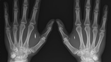 Smart implants: This X-ray depicts the hands of Amal Graafstra, who has had two radio frequency identifier implants in his hands which he uses to unlock his car, computer and door to his home.