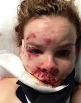 Michelle Weir's facial injuries as seen the day after her April 2015 cycling accident.