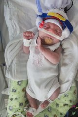 Baby Lexi weighed just 623 grams at birth.