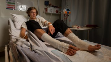 Still in shock: Sam Kanizay's wounds were seeping blood at Dandenong Hospital on Sunday, 18 hours after he emerged from the bay at Brighton with bloody legs, possibly by tiny bay creatures.