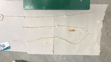 Dr Kenny Banh, the emergency physician at the University of California at San Francisco, in Fresno, stretched out the tapeworm on the ER floor and measured it - all 1.5 metres of it.