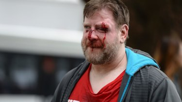A Trump supporter is injured after sides clash at a rally for President Donald Trump at Martin Luther King Jr. Civic Center Park in Berkeley, California on March 4.