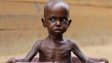 Two-year-old Aden Salaad, in 2011, a refugee in Dadaab, Kenya. Africa has a keen interest in reducing global warming risks given its exposure to extreme weather and widespread poverty.