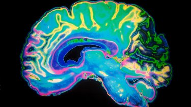"Scientists have discovered how drugs could attack abnormal ""plaques"" in the brain."