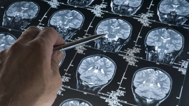 About 250,000 Australians have either dementia or Alzheimer's.