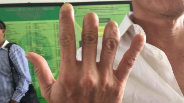 Lim Jit Wee's hand.