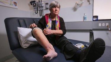 Sandra Hocking shows her healing superbug wound at the Austin Hospital.
