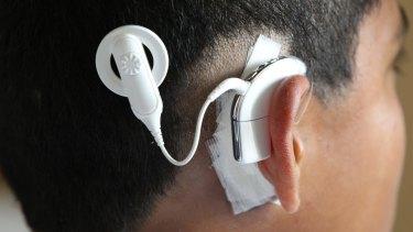 A Cochlear ear device.