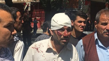 An injured man is seen after Wednesday's explosion explosion in Kabul, Afghanistan.
