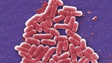 The strain of the E. coli bacteria.
