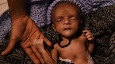 Ifran, a tiny malnourished baby, his heart struggling with every breath, lies on a stretcher in a Red Cross field hospital tent in south-eastern Bangladesh.