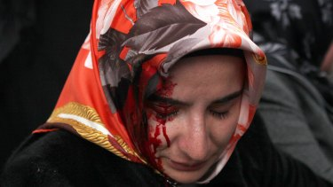 A woman bleeds from an injury after riot police dispersed supporters of the Zaman newspaper on Saturday.