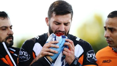 Major blow: James Tedesco leaves the field with a broken jaw.
