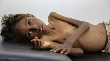 Five-year-old Mohannad Ali lies on a hospital bed in Abs, Yemen, in December. His two-year-old cousin died of hunger.