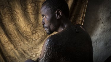 Lawrence, a Rwandan Hutu, survived an arson attack on his home that killed his wife and two children.