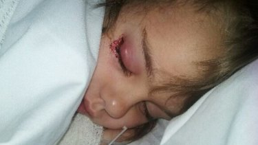 Chelsea Fawcett, 5, contracted eye infection at Elizabeth Quay's water park in Perth.