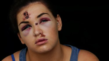 Brittany Merrick who was bashed on Boxing Day night.