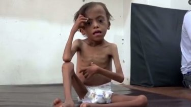 United Nations officials said Yemen would face the world's largest famine in decades if the Saudi-led coalition didn't lift the blockade.