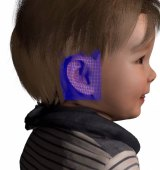 Modelling of a 3D-printed ear for a toddler with microtia.