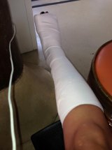 WIN reporter Jodi Lee posted a photo of her injured leg to Jetstar Australia's Facebook page.