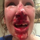 Justin Toro allegedly punched Ms Savins twice in her face, breaking her nose and chipping her front tooth.
