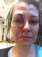 Erica Moloney, 32, who was allegedly punched in the face.