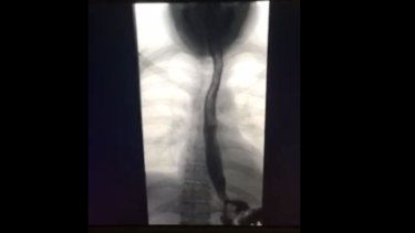 Scan showing contrast ink travelling through Jemma Caprioli's oesophagus directly to her small intestine.