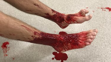 Teenager Sam Kanizay's bloody legs after possibly being bitten by something while bathing at Brighton.