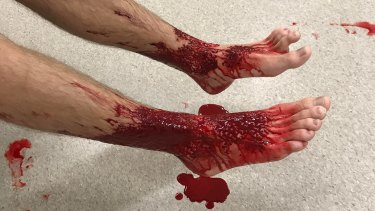 Sam Kanizay's feet after he emerged from the water at Brighton Beach.