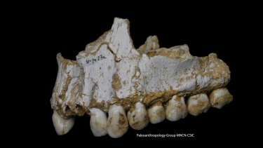 A dental calculus deposit is visible on the rear molar of this Neanderthal upper jaw bone.This individual was eating poplar, a source of aspirin, and had also consumed moulded vegetation including Penicillium fungus, source of a natural antibiotic.
