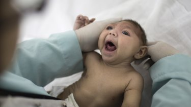 A baby with microcephaly, a defect linked to the Zika virus, in Brazil.