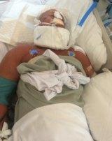 Gary Dowley lies in a Thai hospital after suffering a brain aneurysm.