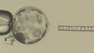 Injection of human stem cells into a pig blastocyst, a precursor to the embryo.