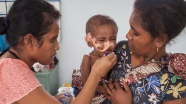 A malnourished child with mother and a nurse in Dili.