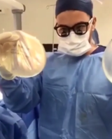 Dr Tavakoli weighs up between breast implants on Snapchat.