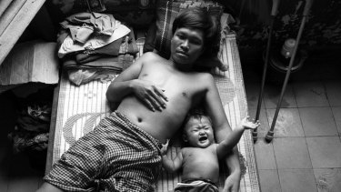 Nhek Sarun, 34, lies with his eight-month-old baby Nheck Chantrea in the Phnom Penh Military Hospital after stepping on a land mine near Pailin.