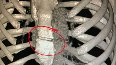 Medical images of the crack in Caroline Buchanan's sternum. Photo: Supplied