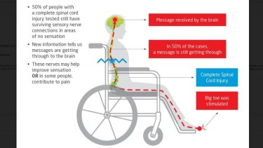 Almost 50 per cent of patients with complete spinal cord injury still had some connectivity, the research suggested.