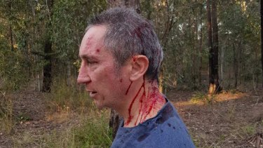 Jim Dodrill after the attack on Sunday.