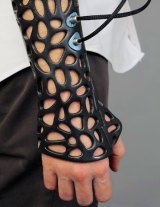 Osteoid: The 3D-printed cast could help heal bones faster.