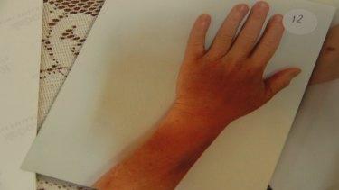 Bruising on Ms Berry's wrist.