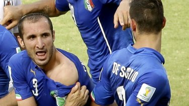 Italy's Giorgio Chiellini displays his shoulder, showing apparent teeth marks.