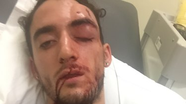 Isaac Keatinge - man bashed in Newtown.