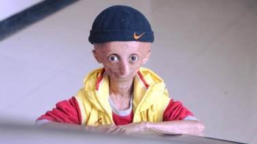 Nihal Bitla, who has died aged 15, suffered from progeria, which causes accelerated ageing.