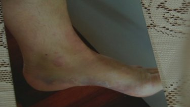 Ms Berry's ankle was stomped on by an officer.