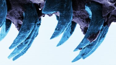 A scanning electron microscope image of limpet teeth.
