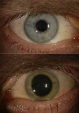 Dr Crozier's eye changed colour from blue (top) to green, then back again.