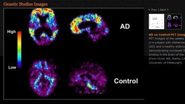 Scans of Alzheimer's sufferer brain, top, and a normal brain, below.